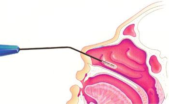 Tratamiento de la hipertrófica obstructiva de cornetes con coblación